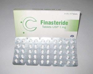 フィナステリド錠の個人輸入