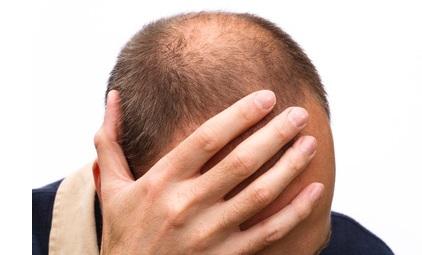 ノコギリヤシの利用は効果なし?薄毛、抜け毛改善フィンペシア!?
