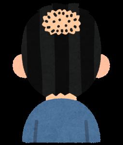 頭頂部【O字】への効果は?
