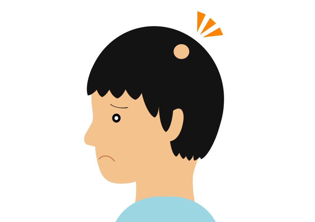 円形脱毛症の治療に塗り薬は効果ないって本当?効果的な治療薬とは?