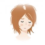 女性男性型脱毛症