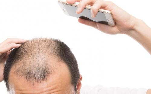 育毛サプリは効果ある?効かない理由や、より効き目がある薬が存在!